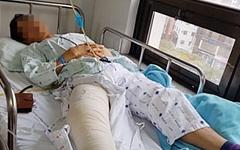 폐지 줍던 60대 '묻지마 폭행'... 가해자는 '오리무중 '