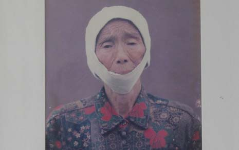 턱이 없어진 '무명천 할머니'... 그 끔찍한 세월