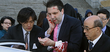 리퍼트 미 대사 '피습'  봉합수술 위해 병원으로 후송