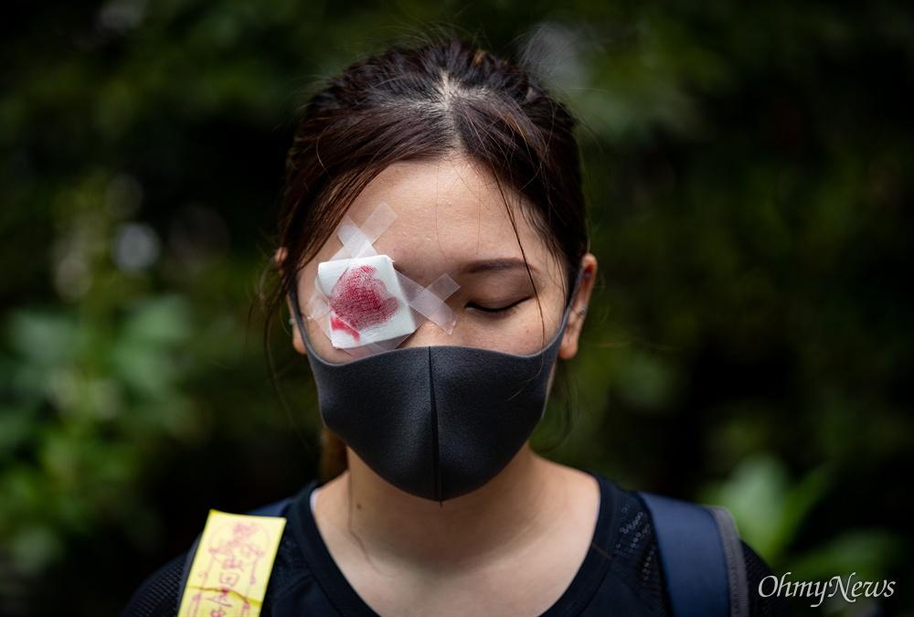 과잉진압 항의하는 홍콩시민들 중국 정부의 강경진압 경고에도 불구하고 18일 오후 송환법에 반대하는 홍콩시민들이 빅토리아 공원을 가득 채워 집회를 성사시킨 뒤, 폭우 속에 거리행진을 하고 있다. 경찰의 고무총탄 사용으로 눈을 다친 시민을 상징하며 안대를 한 시민이 집회에 참여하고 있다.