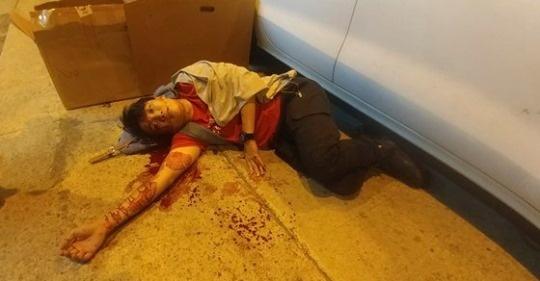 홍콩 민주화 시위를 주도해온 지미 샴 민간인권전선 대표가 지난 10월 16일 밤 정체불명의 괴한들로부터 쇠망치 공격을 당한 모습.