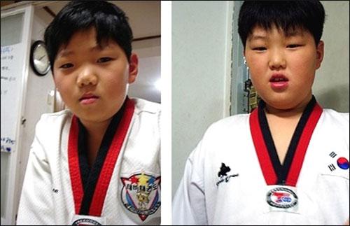 연년생 말썽꾸러기 형제는 여느 남자 아이들처럼 씩씩하고 밝다. 왼쪽이 동생 건형이(9), 오른쪽이 형 재형이(10)