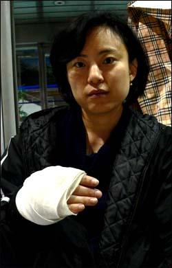 송정문 대표가 손바닥을 다쳐 붕대를 감고 있다.