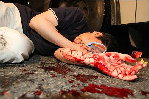 방패로 가격당해 피 흘리는 시민 2일 새벽 서울 태평로에서 열린 미국산 쇠고기 수입반대 촛불집회에 참가한 한 시민이 경찰의 진압과정에서 방패로 얼굴을 가격당해 피를 흘리며 쓰러져 있다.