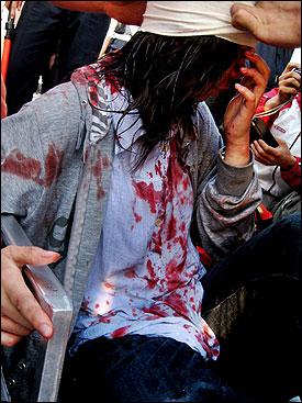 6월 1일 경복궁 동십자각 앞에서 경찰 방패에 찍혀 머리에 출혈을 일으킨 대학생 김선미씨(25세)의 모습.