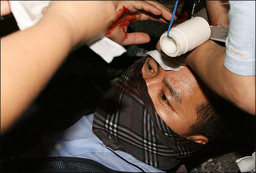 정부가 새로운 미국산 쇠고기 수입 위생조건 고시를 강행키로 한 25일 밤 '촛불' 시민들이 서울 신문로 한글회관 앞에서 청와대로의 진입을 막는 경찰과 몸싸움을 벌이다 부상을 당해 응급처치를 받고 있다.