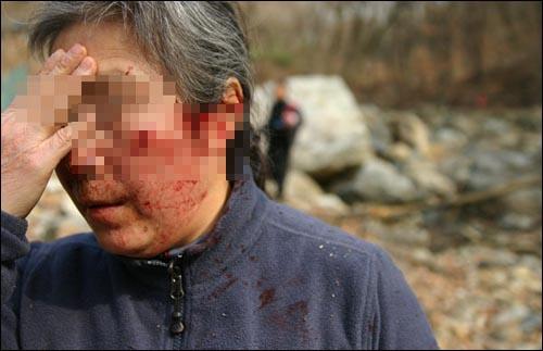 직원들이 휘두른 전기톱에 얼굴을 다친 인근 주민