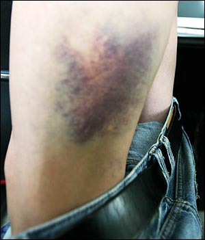 1일 오후 종로3가 지하철역에서 경찰이 휘두른 곤봉에 맞아 <민중의소리> 김아무개 기자의 다리에 피멍이 들었다.