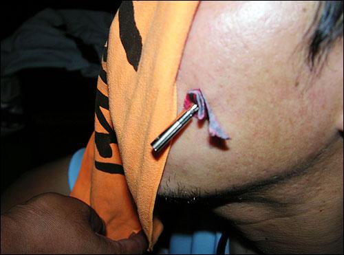 쌍용차노조 조합원 박아무개씨가 22일 경찰과 충돌 과정에서 경찰이 쏜 테이저건에 얼굴을 맞았다.