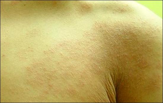 아토피가 발병하면 피부가 붉게 부풀어오르고 발진, 가려움증, 진물 등의 증상이 나타난다.
