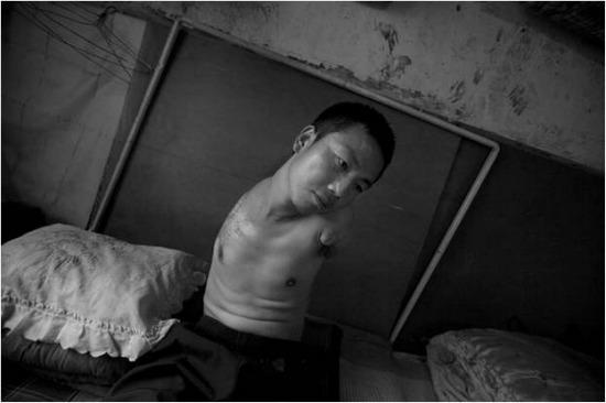 중국 탄광에서 노동을 하다 양팔이 절단된 청년노동자 류펑씨.