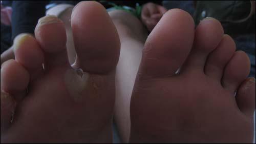 물집 투성이인 정민이의 발.