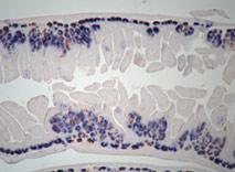 네이쳐 지에 실린 연구와 관련된 구본경 박사의 실험 사진: 돌연변이 생쥐 (Rnf43;Znrf3 Mutant)의 내장에 생성된 종양 조직을 보여주는 사진. 남색으로 염색된 것은 내장상피줄기 세포이고, 갈색으로 나타난 것은 간호세포(Niche Cell). 정상적인 부분에서는 왼쪽 하단처럼 아주 국한된 부분에 줄기 세포와 간호 세포가 존재하는데Rnf43;Znrf3의 돌연변이가 일어난 부분에서는 줄기세포가 계속 증식을 하여 소장 안쪽으로 종양 조직을 형성하고 있다