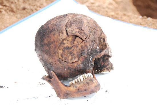서울대 의대 법의학연구소의 이윤성 교수가 검사한 장준하 선생의 두개골 사진. 두개골에 있는 깨지고 함몰된 부위가 외부 타격에 의한 타살임을 선명하게 말해주고 있다.