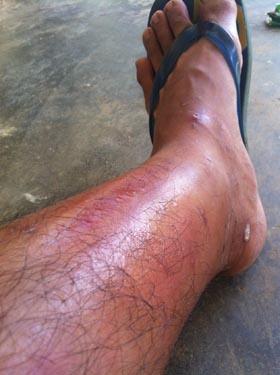남수단에 이어 우간다로 떠났던 아들의 다리가 통통 부었다. 리얼 아프리카는 생살 찢는 수술의 고통으로 다가왔다.