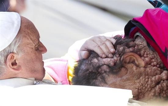 지난 11월 3일 프란치스코 교황이 바티칸 시티 성 베드로 광장에서 열린 일반인들을 대상으로 하는 알현 행사 말미에 피부병에 걸린 사람을 껴안고 있다.