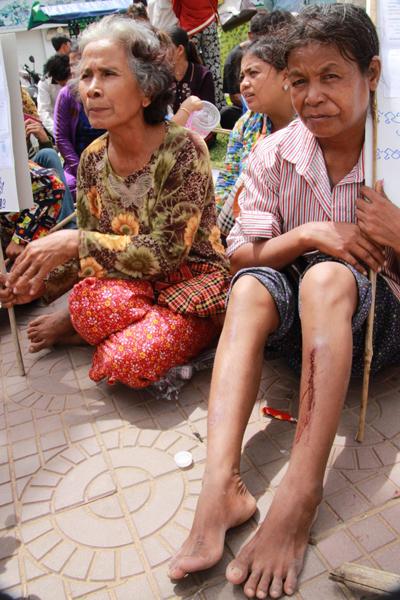 재벌들의 강제적 토지수탈에 항의하며 진압경찰과 몸싸움을 벌이는 과정에서 다리에 상처를 입은 나이든 한 여성농민의 모습.