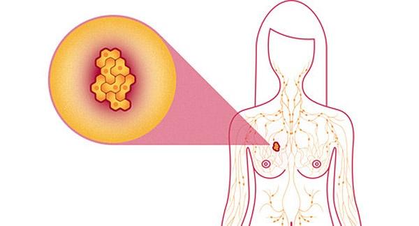 유방암은 이야깃거리가 많은 암이다.