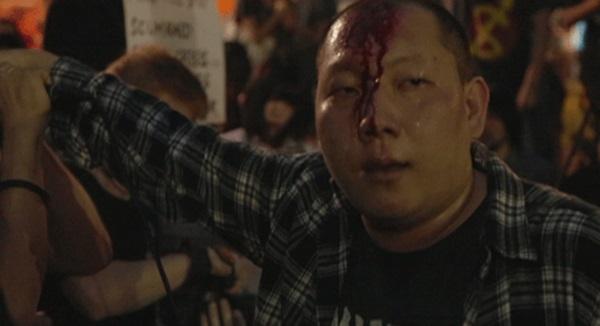 파인더스팟의 보컬리스트 송찬근이 마이크로 자신의 이마를 가격하여 피를 흘리고 있다.