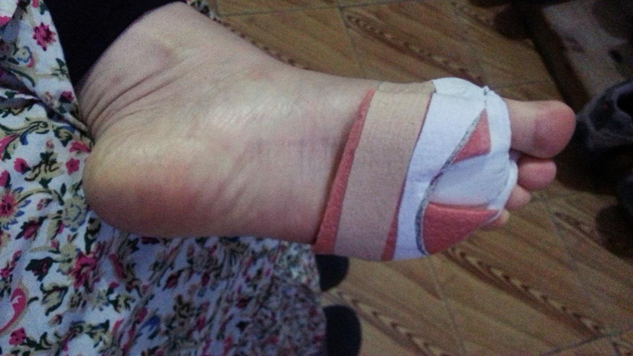 호스피탈레로 호세가 치료해준 발  스티로폼으로 상처가 심한 부분에 부담이 가지 않게 처지해주었다
