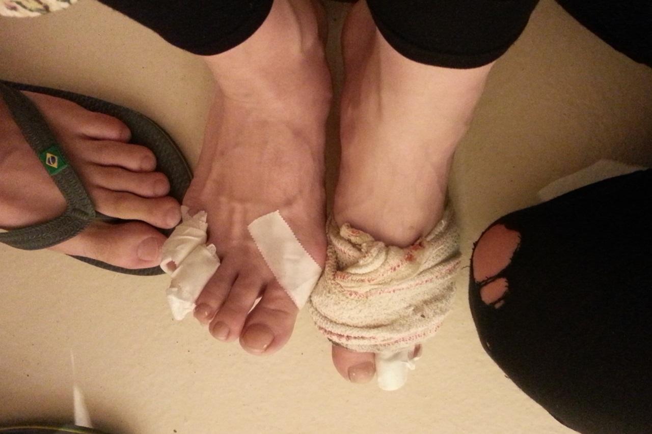 물집으로 엉망이 된 발 물집을 얕보면 이렇게 된다. 소독을 꾸준히 해야한다