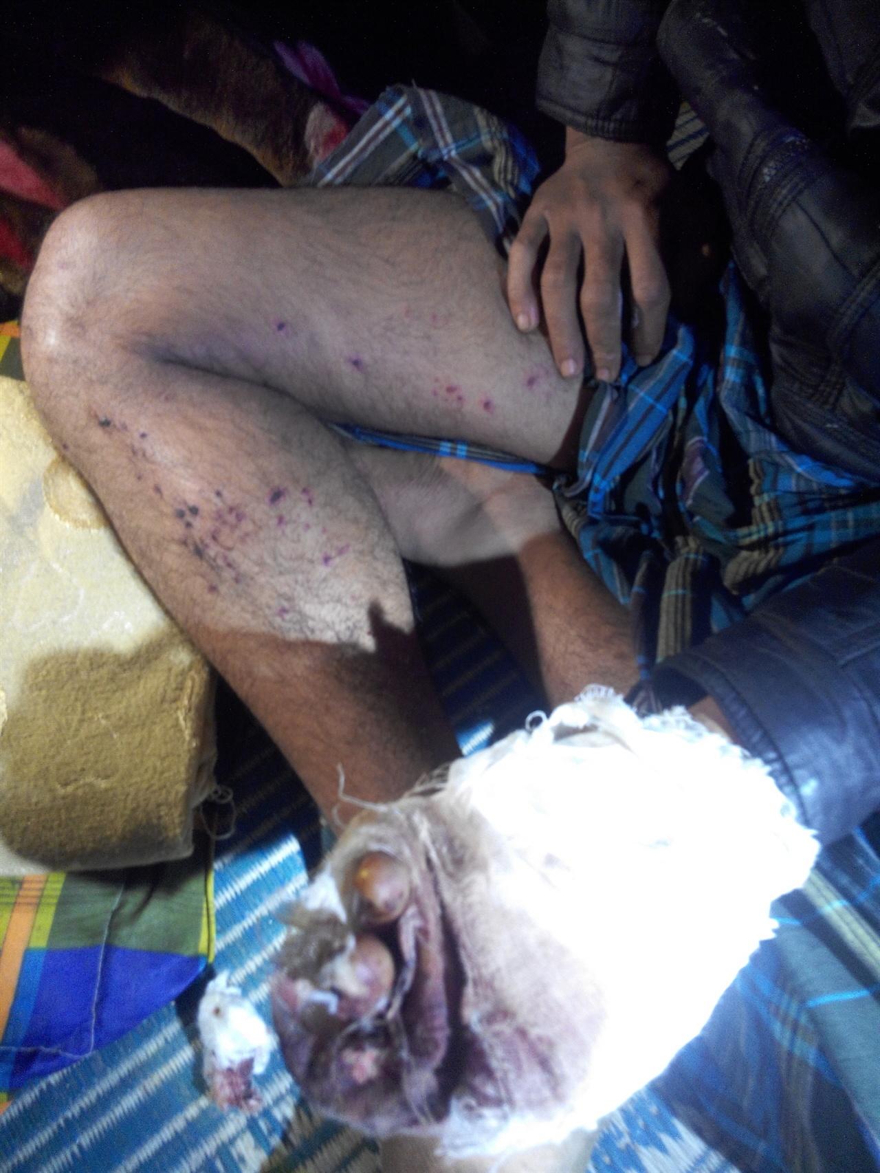 손과 다리에 심각한 부상을 당한 로힝야 남성 미얀마군의 로힝야족 토벌작전으로 인해 손가락 절단과 다리에 부상을 입은 로힝야 남성