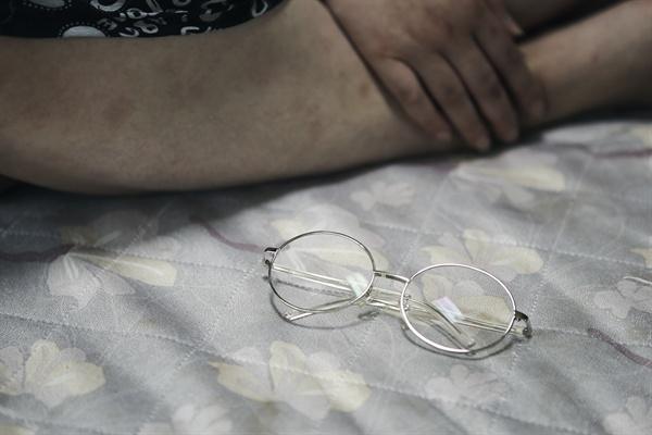 메탄올 중독 실명 피해자 이현순씨의 안경.