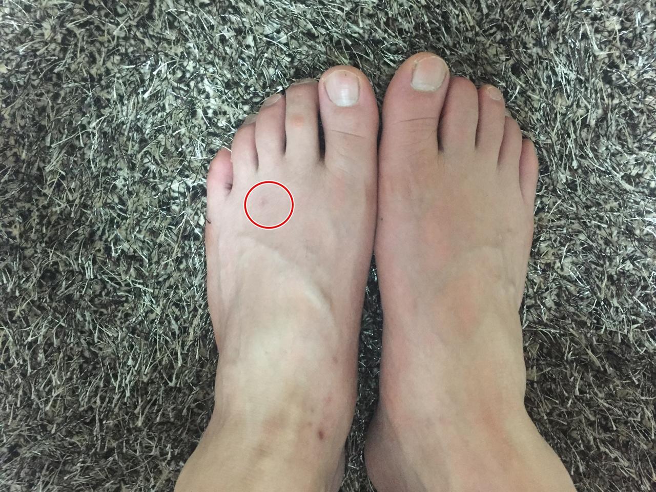 통풍 발작이 왔을 때 사진을 찍어 둘 생각을 못했다. 아직도 왼쪽 발이 불편한데 외관으로 보기에는 별로 차이가 없다