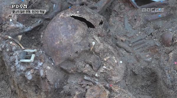 지난 8일 방송된 'PD수첩 - 끝나지 않은 전쟁, 민간인 학살'의 한 장면