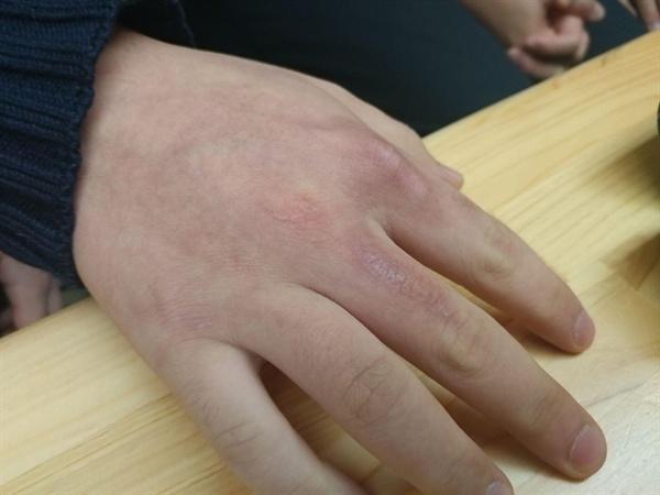 고등학생 A군은 2018년 5월 한진택배 대전물류센터에서 일하다 부상을 당했다. 사고 후 반년이 지났지만 여전히 손가락에 자국이 남아있다.