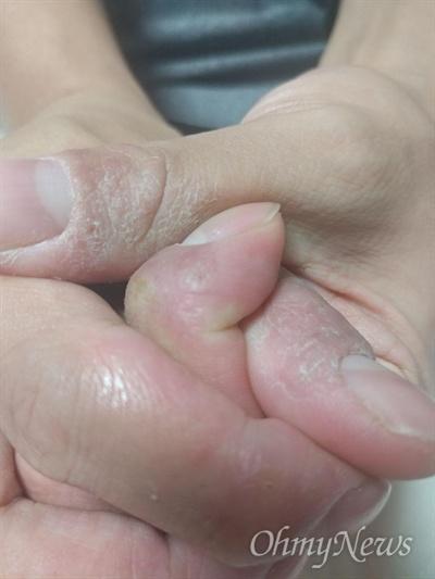 현대위아 창원1공장에서 일하는 하청업체 비정규직 노동자들이 세척용 신너와 절삭유를 사용하다 집단 피부병이 발생했다며 대책마련을 호소했다.