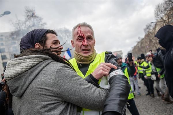 지난 9일 파리에서 열린 '노란조끼 시위' 현장. 한 시위 참가자가 부상을 입은 뒤 '스트리트 메딕'과 함께 대피하고 있는 모습.