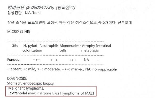 김상규씨가 2009년 서울대병원에 제출한 서울대병원 의무기록지. 위 말트 림프종이라는 진단명이 적혀있다.