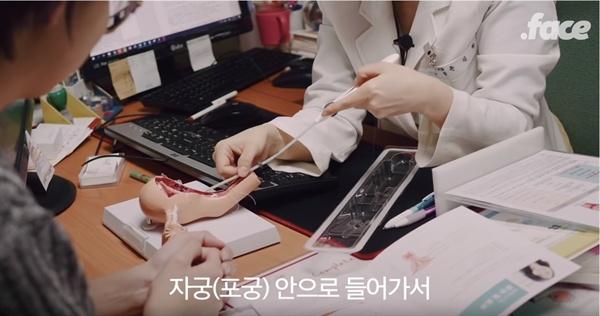 < 닷페이스 >에 실린 영상에서 조소담 대표가 미레나 시술 전 의사와 시술방법에 관해 상의하고 있는 장면.