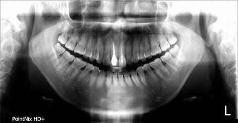 """장모씨가 2018년 2월, 처음 치과를 찾았을 당시의 치아 사진. 장씨는 """"단순한 사랑니 통증 치료를 하러 들렀는데 김 원장이 치아를 전반적으로 치료해야 한다며 진료를 시작했다""""고 말했다."""