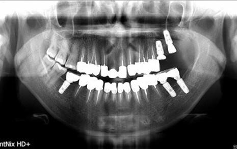 """장모씨의 현재 치아 사진. 20개가 넘는 치아에 임플란트와 크라운보철 치료가 이뤄졌다. 장모씨는 """"현재 다른 병원에서 후속 치료를 하고 있는데, 과잉진료, 부실진료로 인해 어마어마한 고통을 받고 있다""""고 호소했다."""