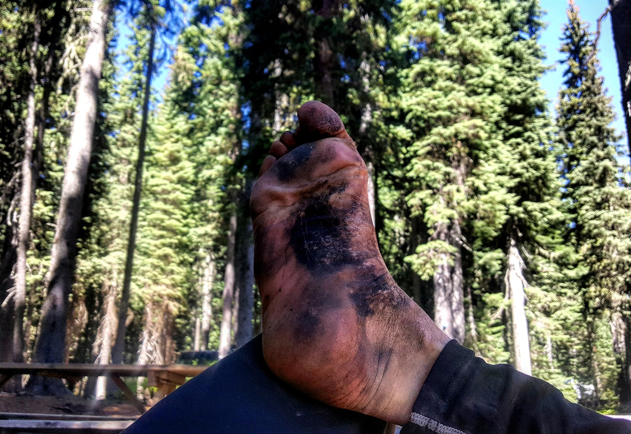 하이커의 발 오롯이 생존에만 특화된 길 위에서의 삶에 특성상 위생은 딴 세상 이야기와 같은데, 하이커들 사이에선 해진 신발, 구멍 난 양말, 더러운 발과 냄새를 훈장처럼 과시하기도 한다. 그중에서도 내 발은 역대급으로 인정(?) 받을 수 있었다.