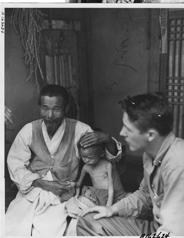 영양실조와 병으로 피골이 상접한 어린이(1953.).