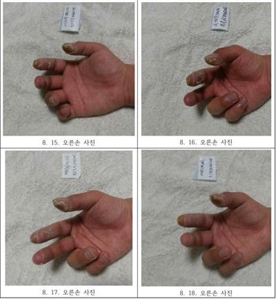 피폭 피해자 A씨의 손이 시간이 지날수록 변해가는 모습