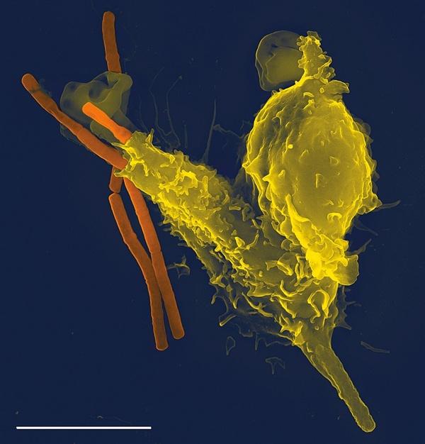 백혈구의 일종인 호중구(노란색)가 세균(주황색)을 포식하고 있는 모습. 면역체계는 인체와 미생물의 공생 혹은 침투 저지 등에 지대한 영향을 끼친다.
