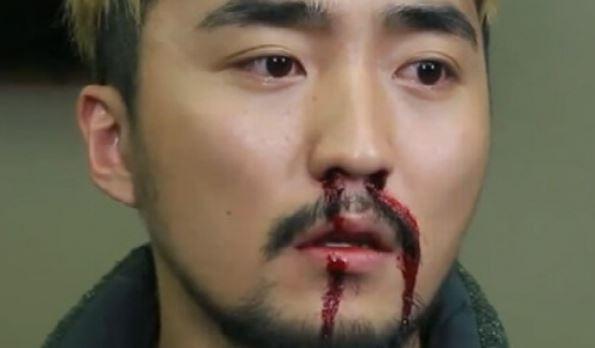 """새벽에 코피가 멈추지 않아 응급실로 갔다. 휴양지에서의 병원행에 비견될 만한 최악의 크리스마스임이 분명하다. (사진은 tvN """"SNL"""" 스틸컷)"""