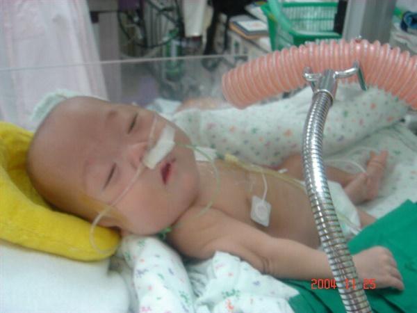 조산을 해서 아이를 병원 중환자실에서 길렀다. 아이의 호흡에 좋다는 말에 가습기 살균제를 넣은 가습기를 틀어주었다. 분홍색 관으로 가습기 살균제의 유해 성분이 아이의 몸 속으로 들어가고 있다.