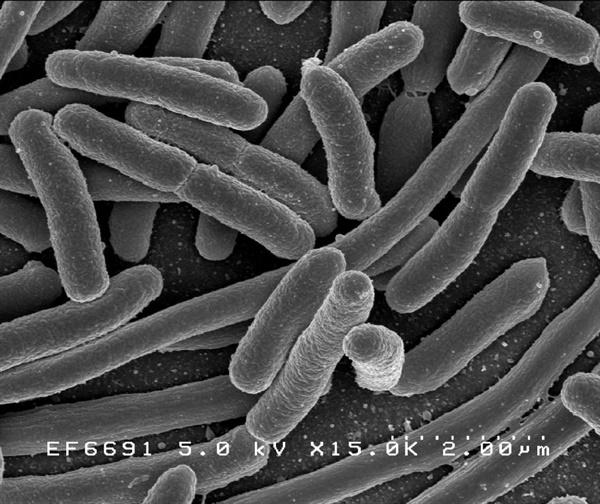 장내에 서식하는 대장균의 전자현미경 사진. 사람 장내에는 여러 종류의 대장균이 산다.