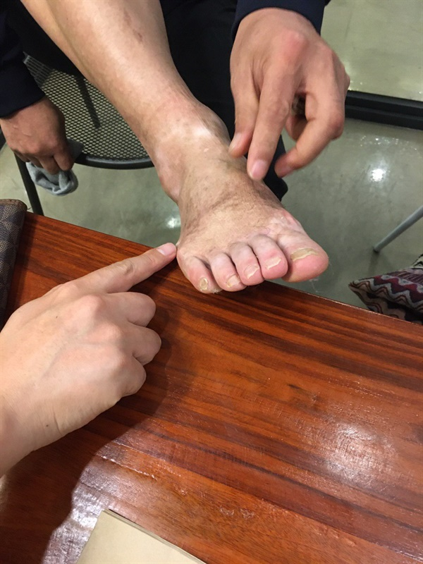 세월호 참사 당시 다친 발을 보여주는 윤길옥씨.