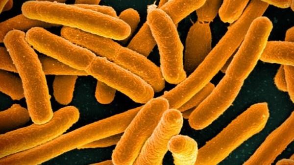 대장균 현미경 사진.