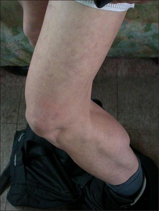 2004년 12월 20일 오마이뉴스 인터뷰에서 심진구씨는 고문과정에서 몽둥이로 허벅지를 집중적으로 가격당했으며 밟히기도 했다고 말했다. 허벅지가 붉은 색에 가까우며 핏줄이 서 있다.