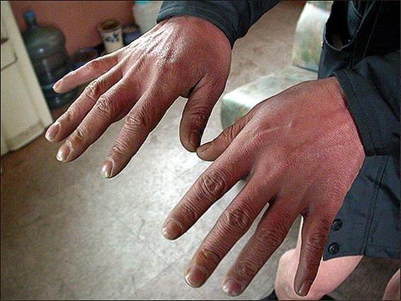 2004년 12월 20일 오마이뉴스와 인터뷰 할 때 심진구씨는 고문 후유증으로 혈액순환이 되지 않아 손이 심하게 붉고 가끔 손을 떨기도 했다. 심씨가 손을 보여주고 있다.
