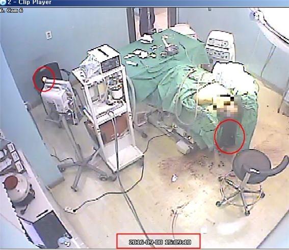 수술실 CCTV 화면 캡처 수술 도중 의사는 모두 나가버리고 간호조무사 혼자 시술하는 모습이 CCTV에 담겨있다.