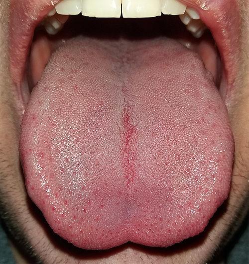 사람의 혀. 맛은 혀에서 주로 느끼지만, 뺨의 입안 쪽 부위, 기관지 상부 부위 등에도 맛세포가 존재한다.