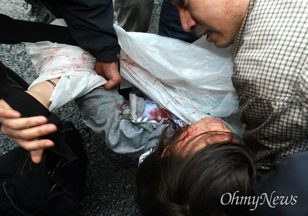 1일 새벽 서울 광화문앞에서 광우병위험 미국산쇠고기 수입반대 및 재협상 촉구 밤샘시위에 대해 경찰이 강제해산을 시도하는 과정에서 한 여성이 얼굴에서 많은 피를 흘리며 쓰러져 있다.